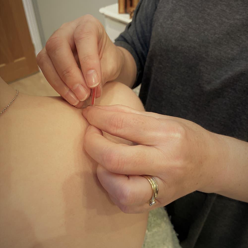 Shoulder acupuncture